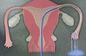 吃中药输卵管能通吗