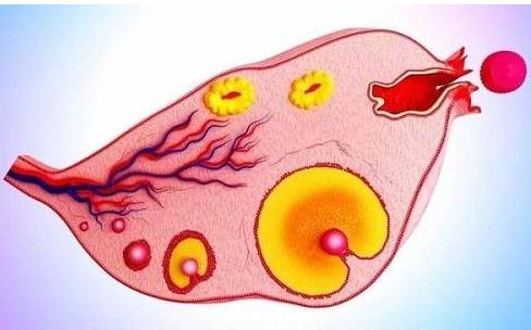 多囊卵巢综合征常见20问答