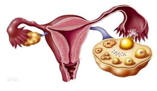 西安多囊卵巢综合症常见问题