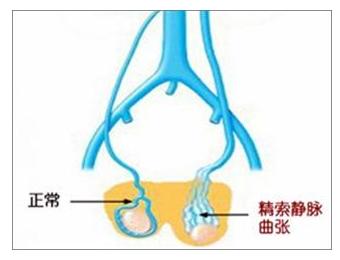 精索静脉曲张需要手术吗